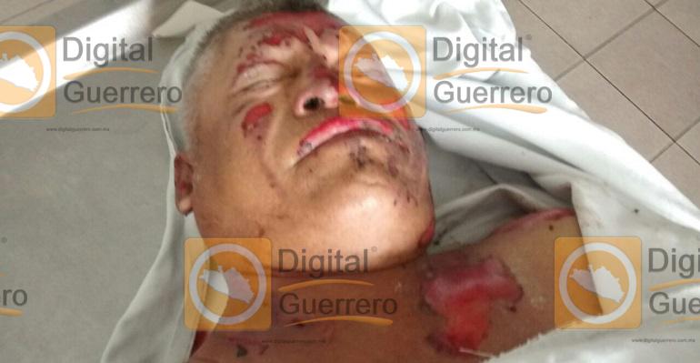 hombre_quemado_chilpancingo_hospital