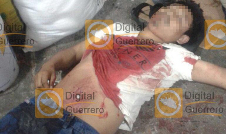 ataque armado en el mercado de Chilpancingo