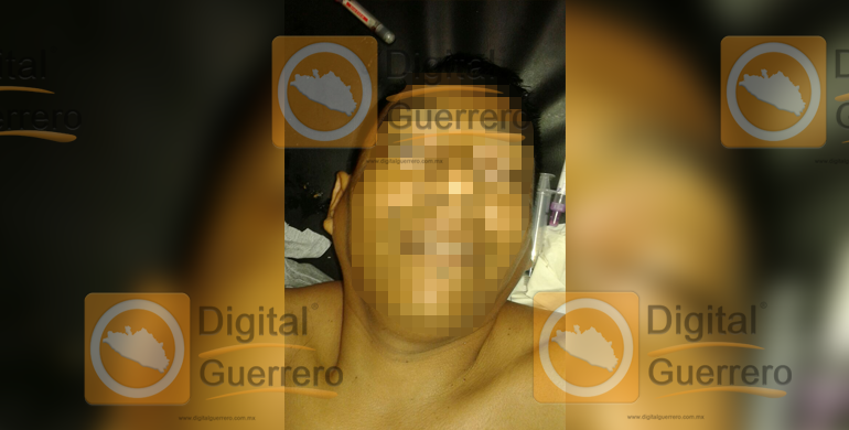 taxista_baleados_acapulco (2)