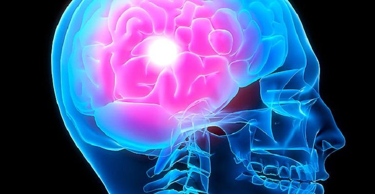 meningitis-salud