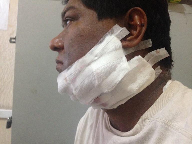 derechos-humanos-guerrero-brinda-acompanamiento-a-periodista-agredido-en-acapulco