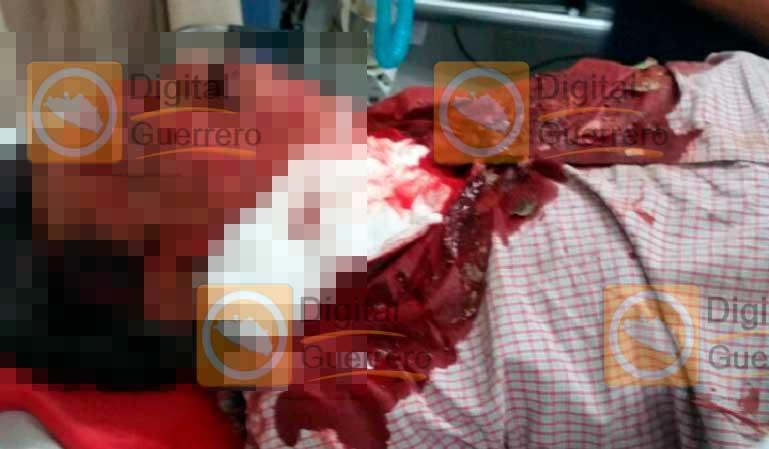 Localizan cuerpo de exalcalde de Zitlala, Guerrero